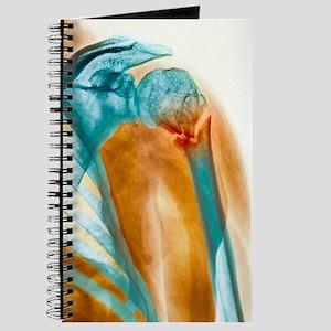Broken upper arm bone, X-ray Journal