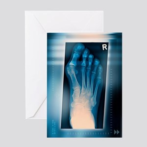 Bunion, X-ray Greeting Card