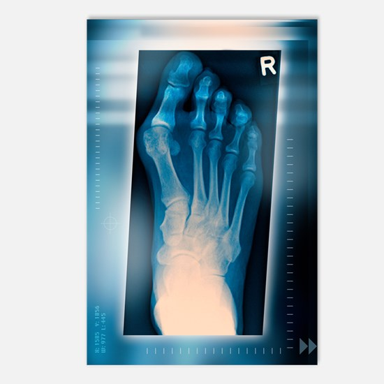 Bunion, X-ray Postcards (Package of 8)