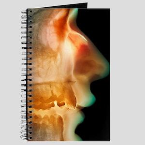 Broken nose, X-ray Journal
