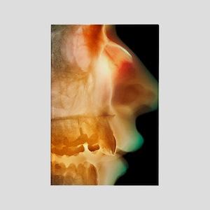 Broken nose, X-ray Rectangle Magnet