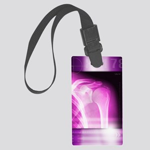 Calcified shoulder joint, X-ray Large Luggage Tag