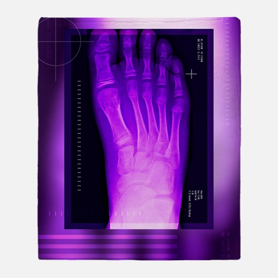 Bunion after surgery, X-ray Throw Blanket