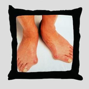 Bunions Throw Pillow