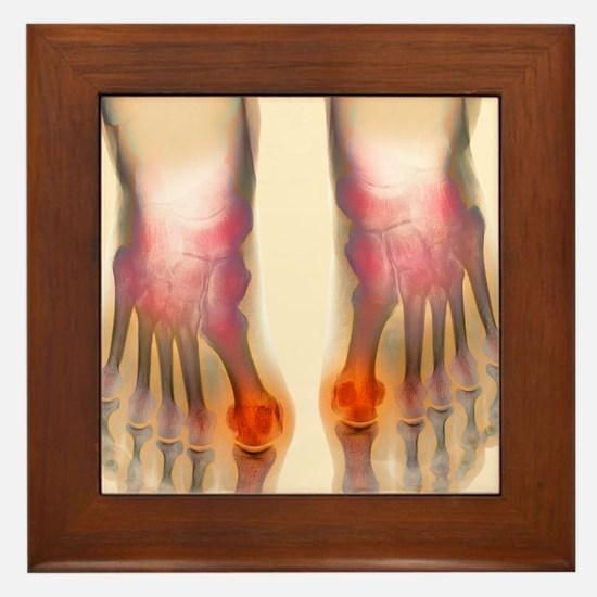 Bunions, X-ray Framed Tile
