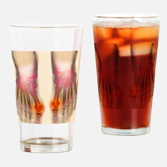Bunions, X-ray Drinking Glass