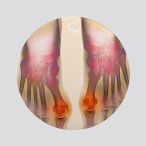Bunions, X-ray Round Ornament