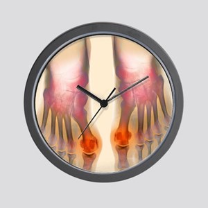 Bunions, X-ray Wall Clock