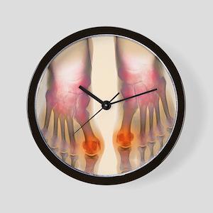 Bunions, X-ray Wall Clock