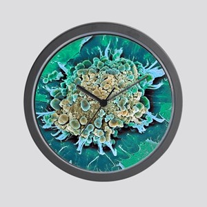 Cancer cell apoptosis, SEM Wall Clock