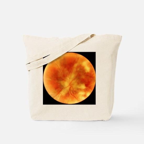 Chorioretinitis of the eye Tote Bag