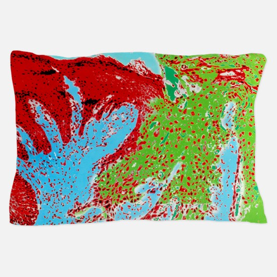 Coloured LM of a section through a rod Pillow Case