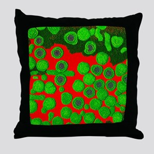 Coloured TEM of hepatitis B virus and Throw Pillow