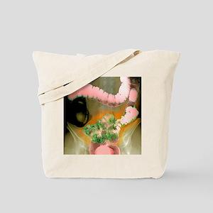 Colon diverticula, X-ray Tote Bag