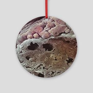 Colon cancer, SEM Round Ornament