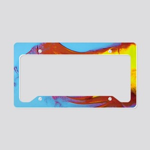 Coloured X-ray of rheumatoid  License Plate Holder