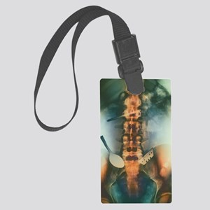Coloured X-ray of spoon and blad Large Luggage Tag