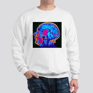 Coloured MRI brain scan of a pituitary  Sweatshirt