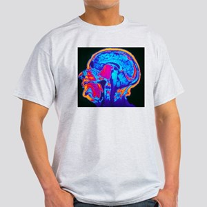 Coloured MRI brain scan of a pituita Light T-Shirt