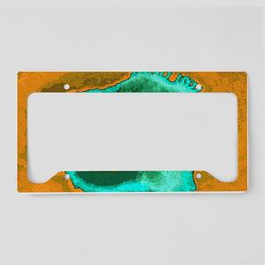 Coloured TEM of a herpes simp License Plate Holder