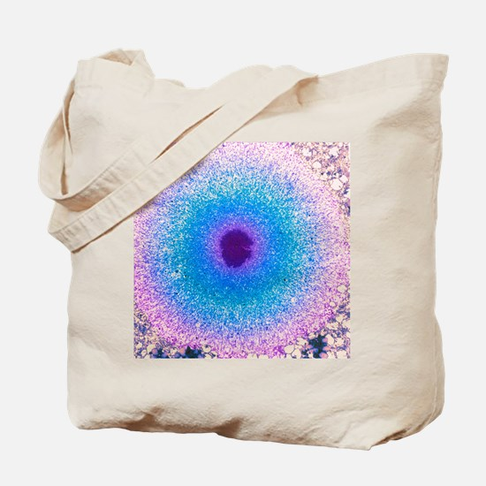 Coloured TEM of a Lewy body in Parkinson' Tote Bag