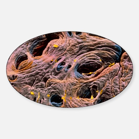 Coloured SEM of intestine, showing  Sticker (Oval)