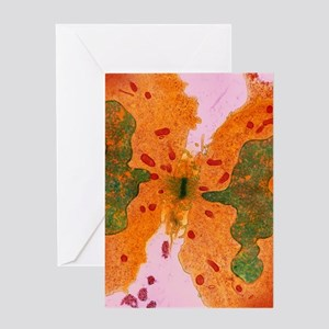 Coloured TEM of a cancer cell dividi Greeting Card