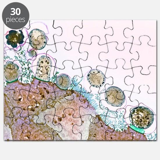 Cryptosporidiosis, TEM Puzzle