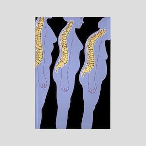 Computer artwork of woman develop Rectangle Magnet
