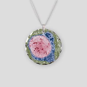 Demyelinated nerve, TEM Necklace Circle Charm