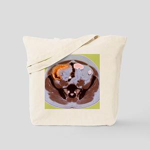 Crohn's disease, MRI Tote Bag