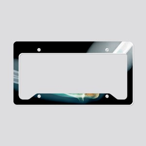 Dislocated elbow, X-ray License Plate Holder