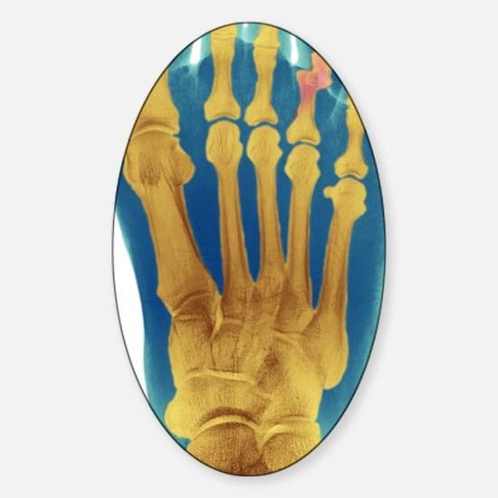 Dislocated toe, X-ray Sticker (Oval)