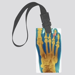 Dislocated toe, X-ray Large Luggage Tag