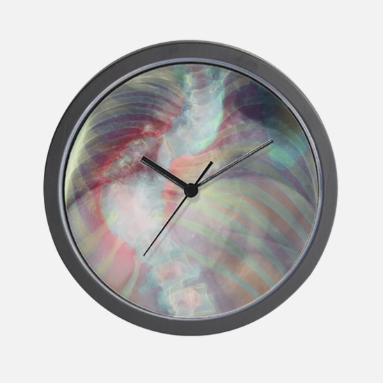Deformed spine in scoliosis, coloured X Wall Clock