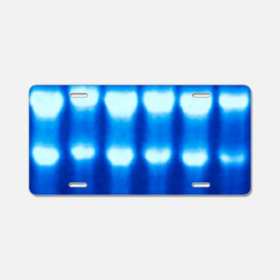 Electrophoresis of RNA Aluminum License Plate