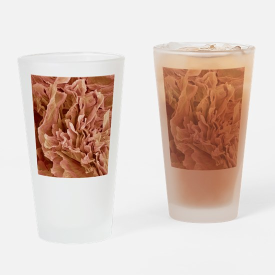 Eczema, SEM Drinking Glass