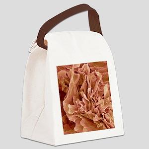 Eczema, SEM Canvas Lunch Bag