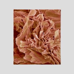 Eczema, SEM Throw Blanket
