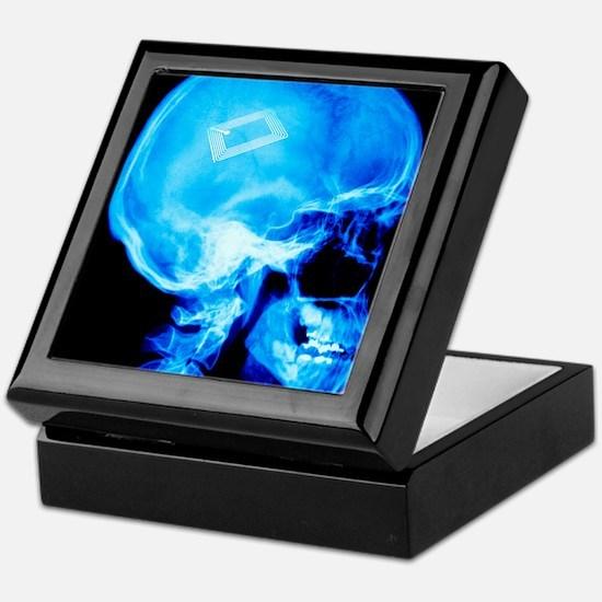Security chip in a human skull Keepsake Box