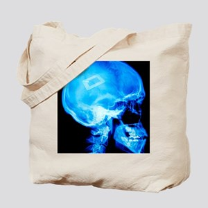 Security chip in a human skull Tote Bag