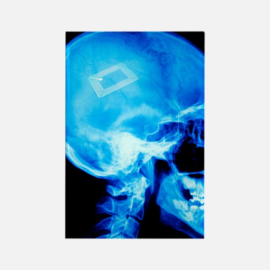 Security chip in a human skull Rectangle Magnet