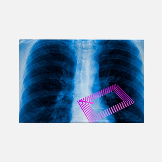 Security chip in a human chest Rectangle Magnet