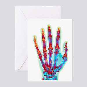 Fractured palm bones of hand, X-ray Greeting Card