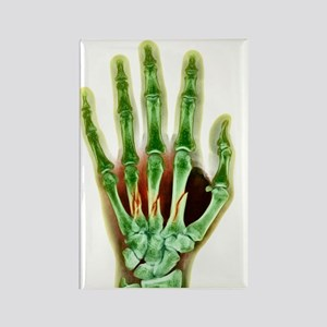 Fractured palm bones of hand, X-r Rectangle Magnet