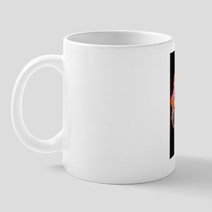 False-colour TEM of Entamoeba histolyti Mug
