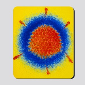 False-colour TEM of an Adenovirus Mousepad