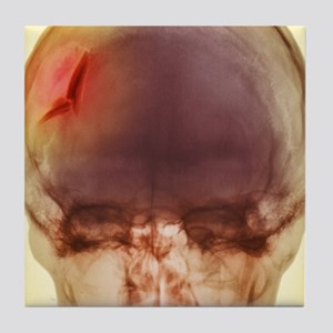 Fractured skull, X-ray Tile Coaster