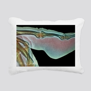Finger inflammation, X-r Rectangular Canvas Pillow