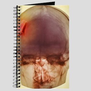 Fractured skull, X-ray Journal